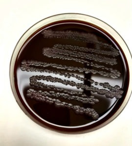 Campylobacter on a laboratory plate